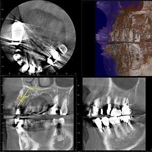 レントゲン(ステントパノラマ・CT)検査では、3次元的に口腔内の状態を確認します
