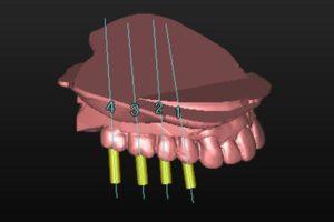 SIMPLANT®(シムプラント)-インプラント術前シミュレーション