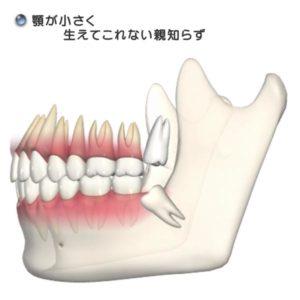 抜歯(01)