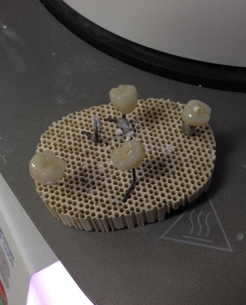インプラント上部構造の製作
