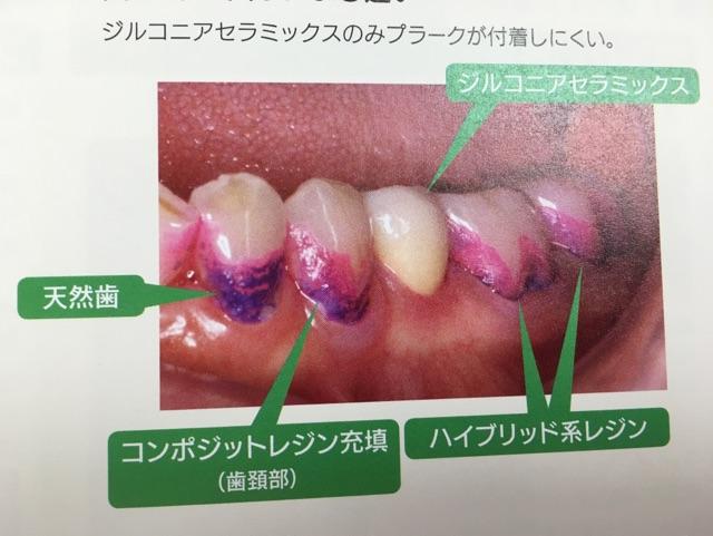 セラミッククラウンは虫歯になりにくい