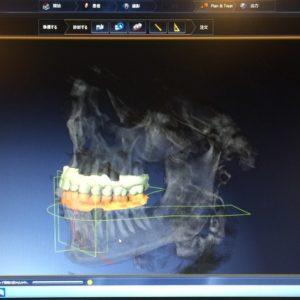 歯科医院もデジタル時代のイメージ
