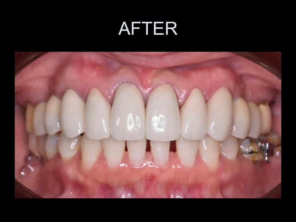 矯正治療とインプラント治療を用いて、機能面と審美面の改善