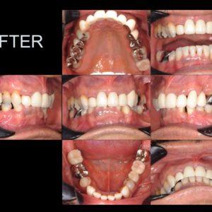 矯正治療とインプラント治療を用いて、機能面と審美面の改善のイメージ