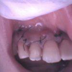 前歯に膿がたまる歯根嚢胞のイメージ