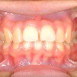 矯正治療〜上顎前突〜抜歯症例のイメージ