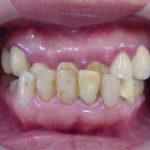 矯正治療後に差し歯を作り替えましたのイメージ