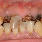 前歯が虫歯でボロボロです、、、。差し歯にしましょう。のイメージ