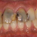 前歯のコンポジットレジン修復 CR充填のイメージ