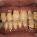 歯を全て失った場合 下顎フルマウスインプラントのイメージ