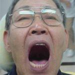 お口を大きく開けても外れない入れ歯のイメージ