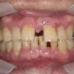 奥歯の欠損を放置した事による噛み合わせの崩壊をインプラントと矯正にて改善した症例のイメージ