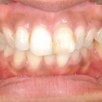 矯正抜歯症例のイメージ