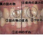 矯正歯科・セラミック治療・ホワイトニングのイメージ