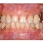 オールセラミッククラウン ジルコニアボンドによる審美修復 〜4前歯の齲蝕および咬耗〜のイメージ