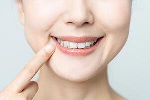 矯正後インプラントとe-Max(二ケイ酸リチウム)による審美歯科治療のイメージ