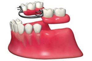 義歯・入れ歯のイメージ