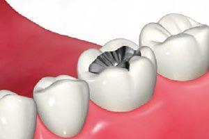 歯を削って、銀の詰め物を入れる