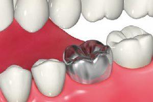 虫歯が進行したり、削る範 囲が大きくなったため、神 経を抜いた歯根に土台を入れて、被せ物を入れる