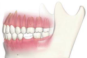 神経がない歯は弱いので、噛んでいるうちに歯根が折れてしまい歯を抜く