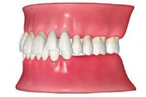 抜けたままにしておくと、隣の歯も倒れてきて抜ける。抜けた歯の噛み合わせる歯も伸びてきて抜ける