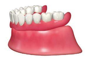 1本ずつ抜けていき、すべての歯がなくなり総入れ歯になる