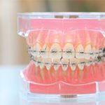 矯正歯科・歯並び改善
