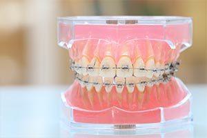歯列不正のまま虫歯治療がなされていたために清掃不良となり虫歯になってしまった症例 〜矯正治療の応用〜のイメージ