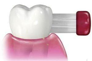 歯の磨き方のイメージ