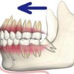 歯が前に倒され、歯並びが悪くなる