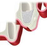 サイナスリフト(1歯)の料金の画像