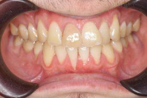矯正治療後、歯並びの後戻りのイメージ