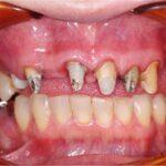 お口の中全体の治療