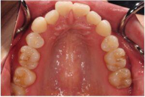 奥歯の動きと違和感の出にくいアライナー交換のタイミングのイメージ