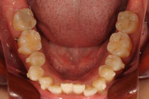 歯にアタッチメントがつきました!のイメージ