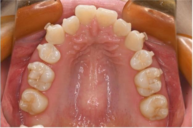 インビザライン矯正中の歯科衛生士が解説するデンタルフロスの使い方のイメージ